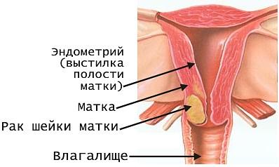 Папиллома шейки матки симптомы