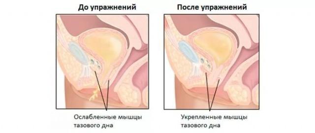 При сексе из вагины выходит воздух