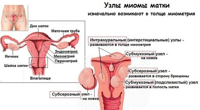 Лечение миомы матки вагинальными свечами# Красивые писи - видео и фото, Смотреть порно фотки онлайн/ kosobrodsk.ru
