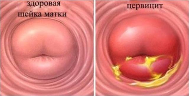 Лейкоплакия шейки матки и секс