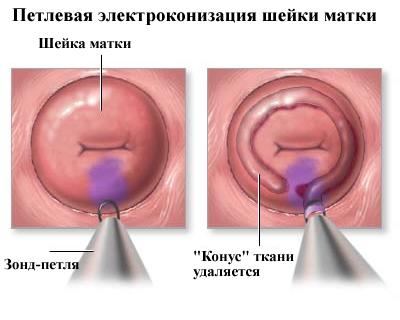 Конизация матки и беременность