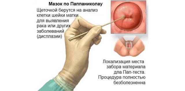 volosataya-kiska-molodoy-devushki