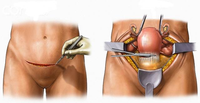 gisterektomiya-vaginalnim-dostupom-video