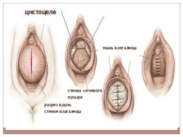 опущение матки симптомы и фото