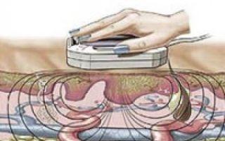 Магнитотерапия и электрофорез при миоме матки