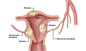 Лечить или оперировать миому матки размером 5 см