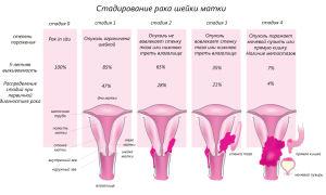 От чего бывает рак шейки матки