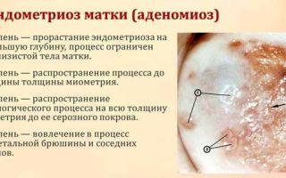 Степени эндометриоза