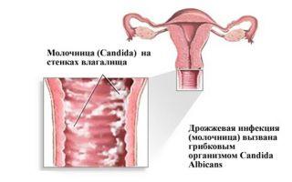 Как принимать Флюкостат от молочницы