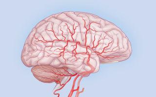 Клинические формы и лечение сифилиса головного или спинного мозга