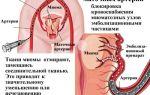 Операции при миоме тела матки