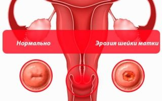Причины врожденной эрозии шейки матки