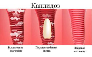Как лечить вагинальный кандидоз у женщин