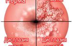 Легкая и тяжелая дисплазия шейки матки