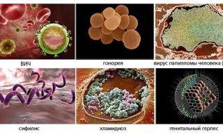 Симптомы и признаки эндоцервицита