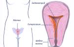 Гиперплазия эндометрия матки в менопаузе и постменопаузе