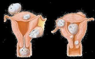 Чем миома отличается от фибромы матки