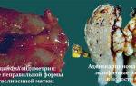 Низкодифференцированная аденокарцинома матки
