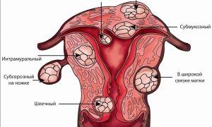 Как быстро растет миома матки