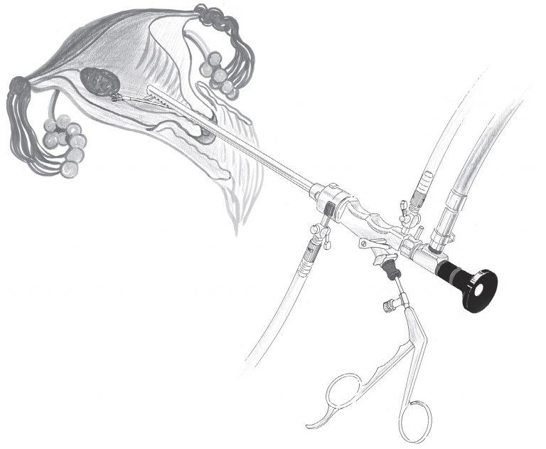 Что такое гистероскопия в гинекологии