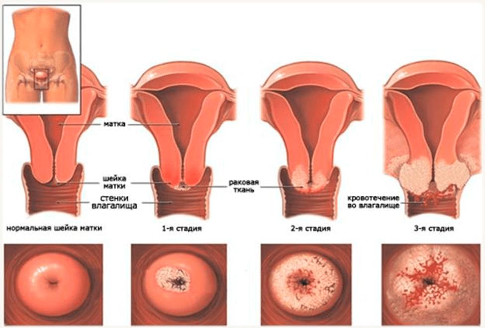 Выделения при раке шейки матки