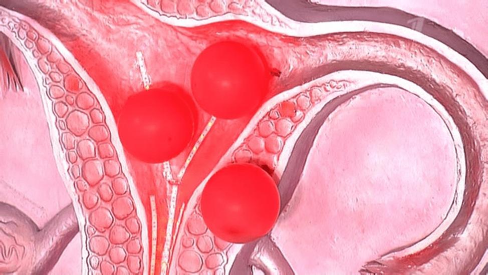 Кровотечение после выскабливания