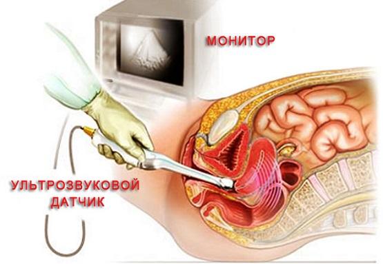 УЗИ малого таза у женщин – как подготовиться к исследованию органов малого таза: рекомендации по подготовке