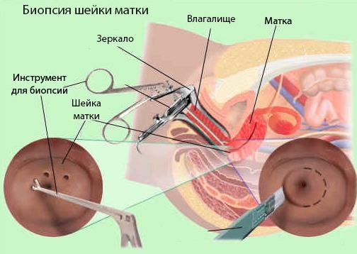 Сколько идет кровь после биопсии шейки матки