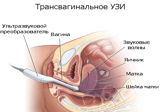 Когда делать УЗИ по гинекологии после месячных?