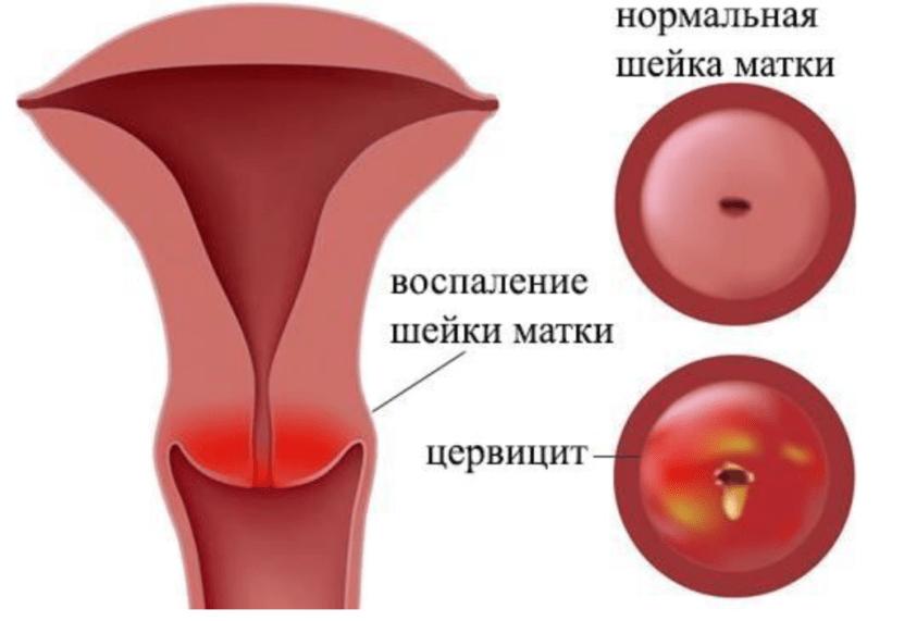 цервицит при генитальном герпесе