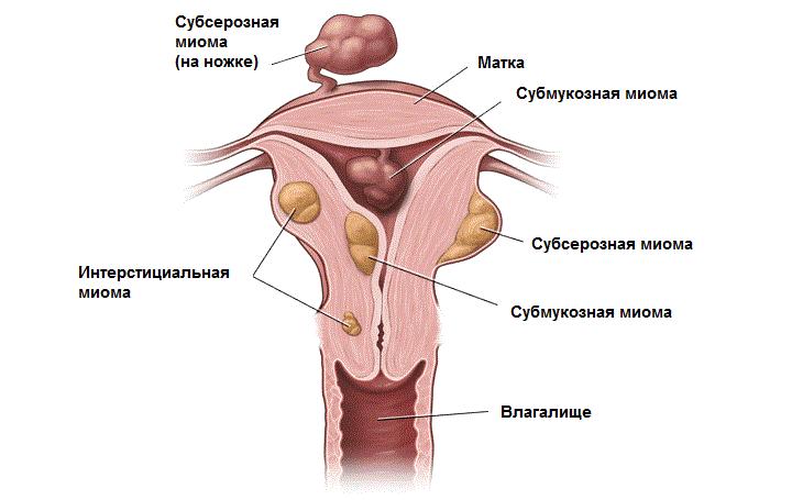 Субсерозная лейомиома матки что это и лечение