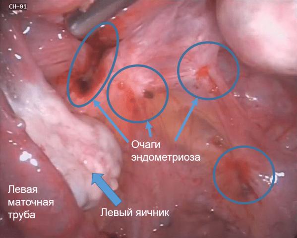 Оперативное удаление эндометриоза при помощи лапароскопии