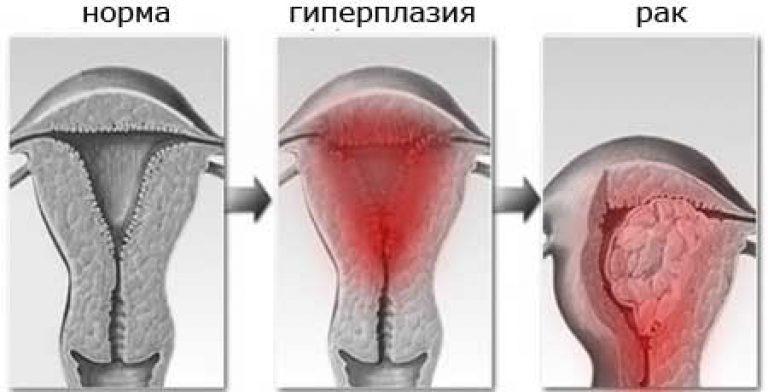 Как изменяется толщина эндометрия в разные дни цикла