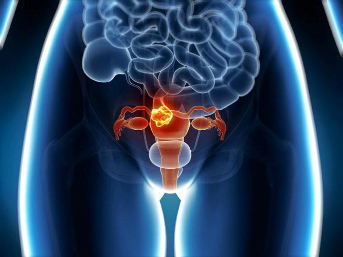 Может ли миома перерасти в злокачественную опухоль - Жизненное