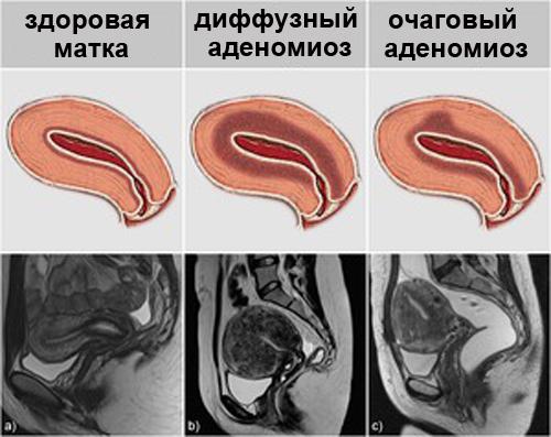 Признаки аденомиоза