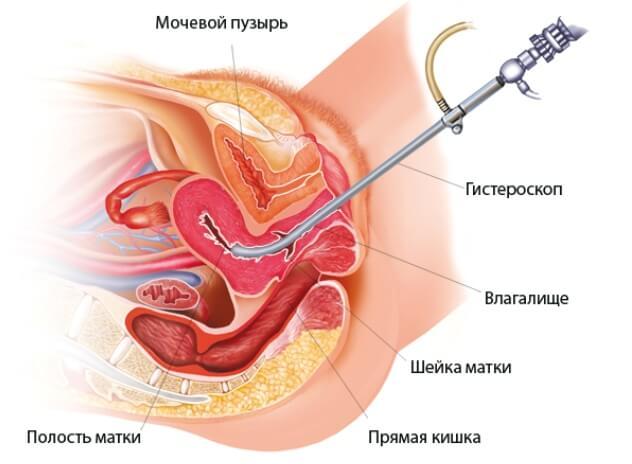 Анализы перед гистероскопией матки