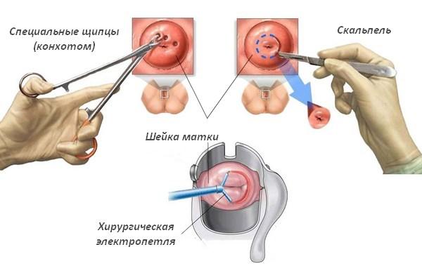 Как проводится ножевая биопсия шейки матки