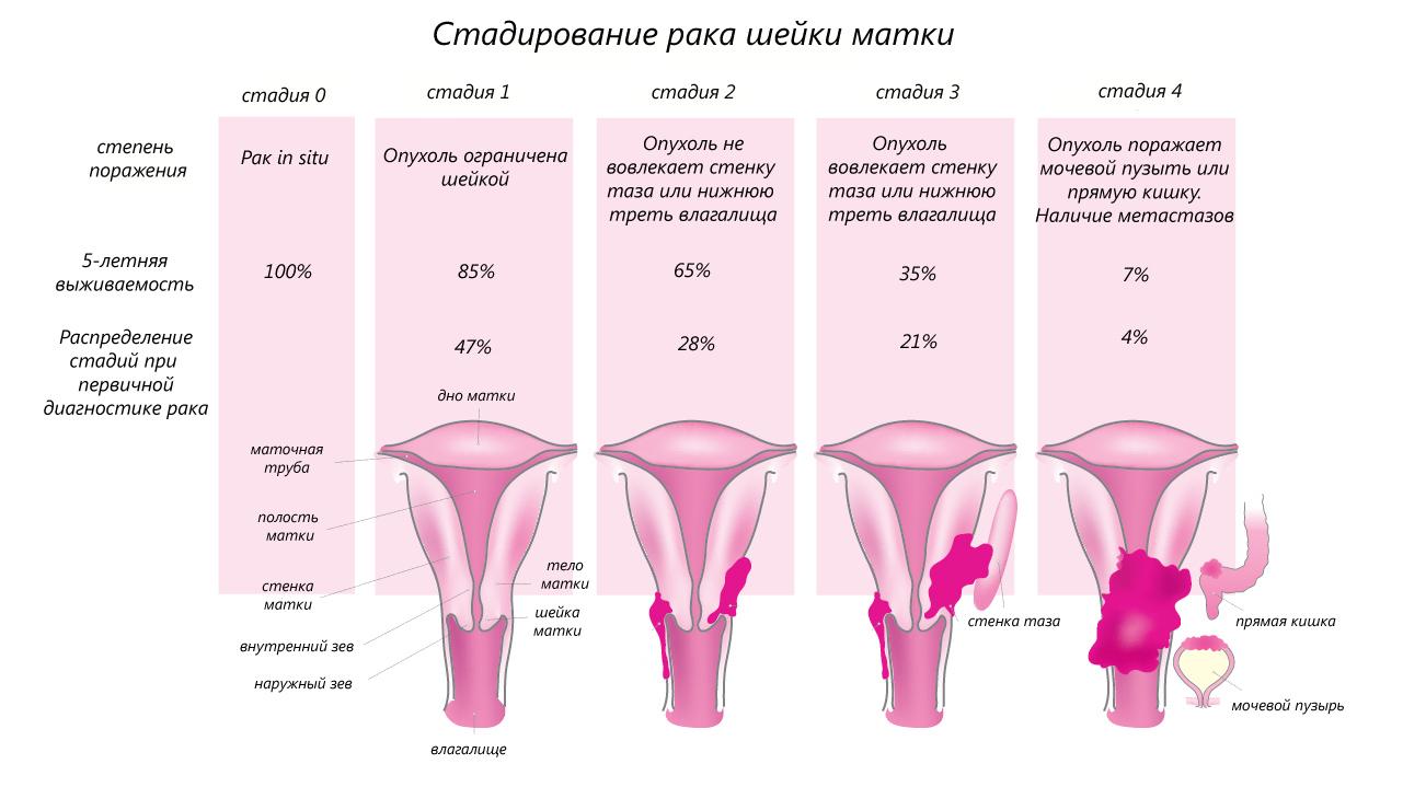 Рак шейки матки и тела: симптомы, признаки, лечение