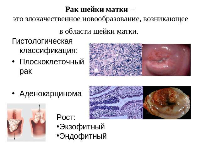Симптомы рака шейки матки на ранней стадии
