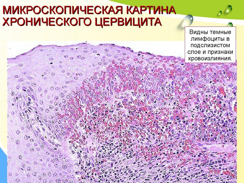 Цервицит – симптомы, диагностика и лечение