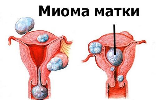 Влияние миомы матки на характер менструальных выделений