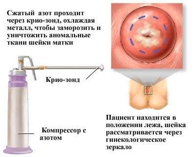 Жидкий азот в гинекологии. Преимущества и недостатки криодеструкции