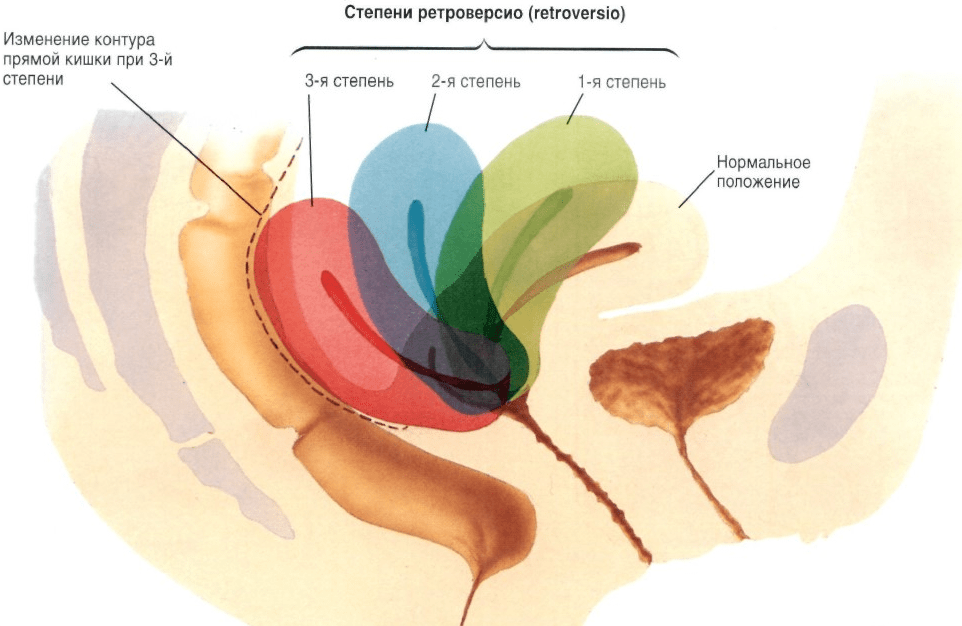 Методы лечения эрозии шейки матки
