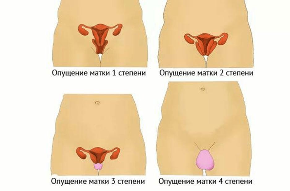 Лечение народными средствами опущение матки