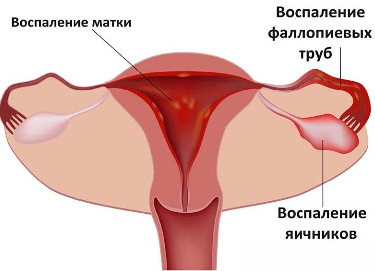 Противовоспалительные свечи в гинекологии при воспалении