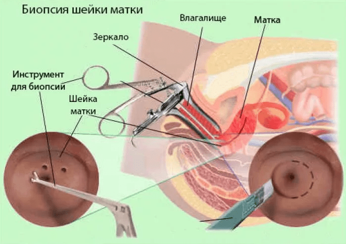 Биопсия шейки матки способы диагностики матки