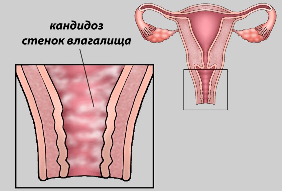 Вагинальный крем (мазь) от молочницы для женщин