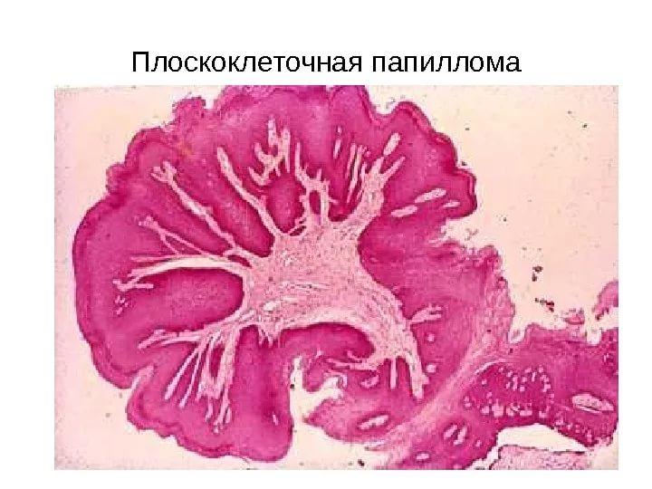 Плоскоклеточная папиллома шейки матки