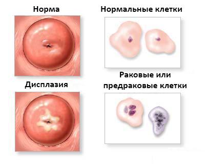 Гистология что это такое в гинекологии — Твой гинеколог