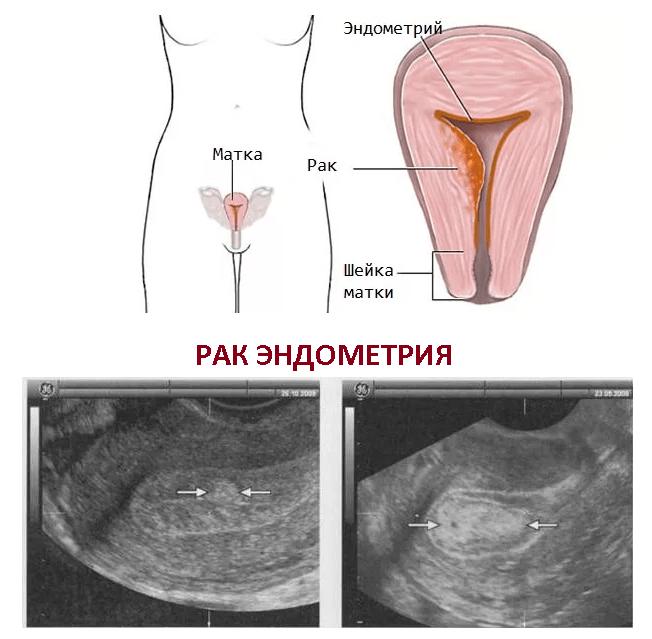 Как определить рак шейки матки: диагностика и симптомы